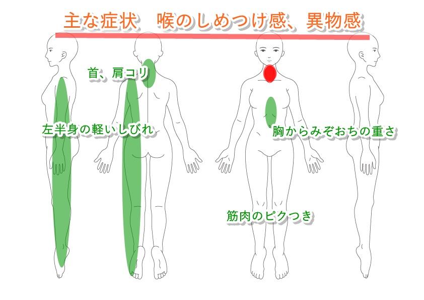 浦和 鍼灸一陽の施術例 喉のしめつけ感、異物感、首、肩こり、左半身のしびれ、筋肉のピクつき、胸からみぞおちの重さ