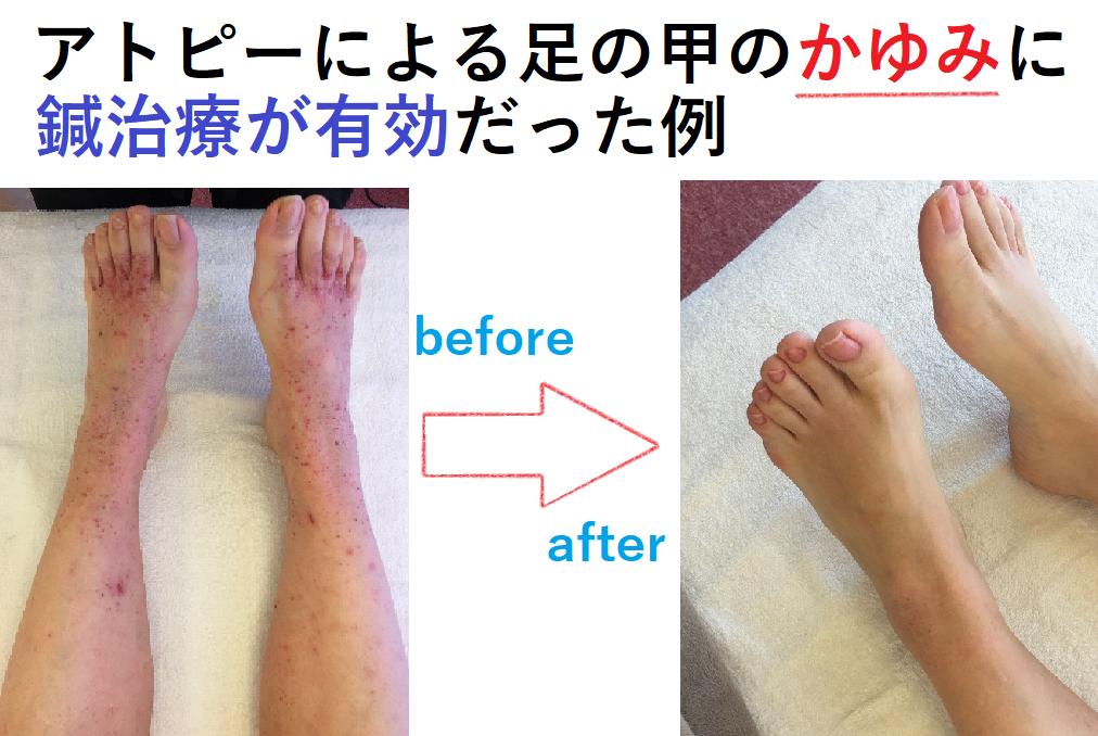 症例6)アトピー性皮膚炎による足の甲のかゆみに鍼灸治療が有効だった例